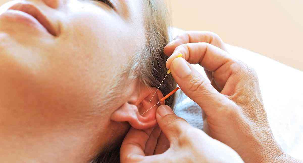 acupuncture depression anxiety