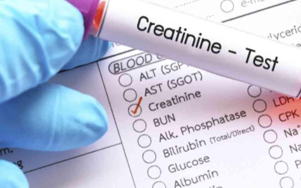 κρεατινίνη, υψηλά επίπεδα κρεατινίνης, που οφείλονται τα υψηλά επίπεδα κρεατινίνης, πως μπορούν να μειωθούν τα επίπεδα της κρεατινίνης