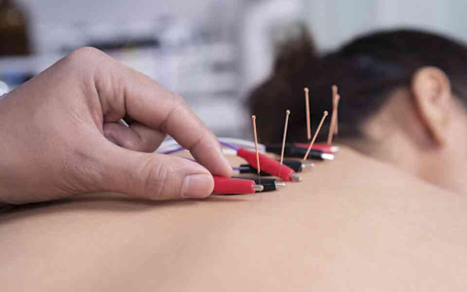 ηλεκτροβελονισμός, τι είναι ο ηλεκτροβελονισμός, χρήσεις ηλεκτροβελονισμού, συχνότητα ηλεκτροβελονισμού, οφέλη ηλεκτροβελονισμού, κίνδυνοι ηλεκτροβελονισμού